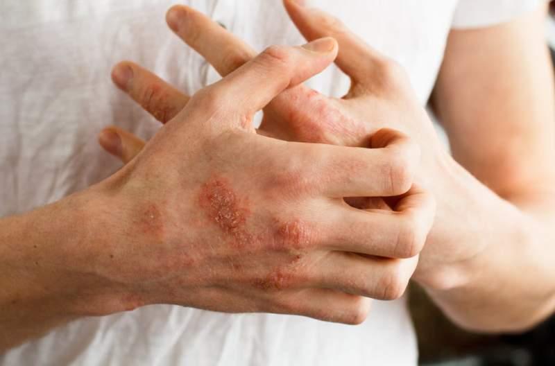 Дрожжевой грибок на руках: как выглядит и как лечить начальную и запущенную стадию, народные средства и медикаментозные препараты