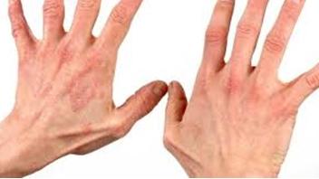 Грибковое поражение рук