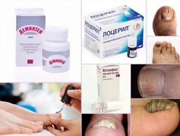 Противогрибковые лаки сегодня считаются самыми эффективными против онихомикоза