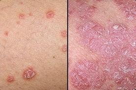 При псориазе маленькие узелки превращаются в обширные зоны шелушения