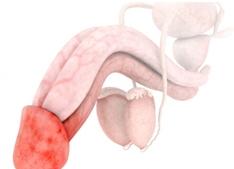 Молочница поражает головку пениса